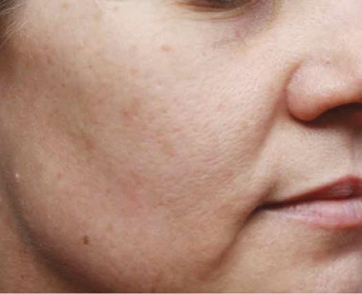 huidverjonging porien