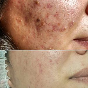 acne resultaat