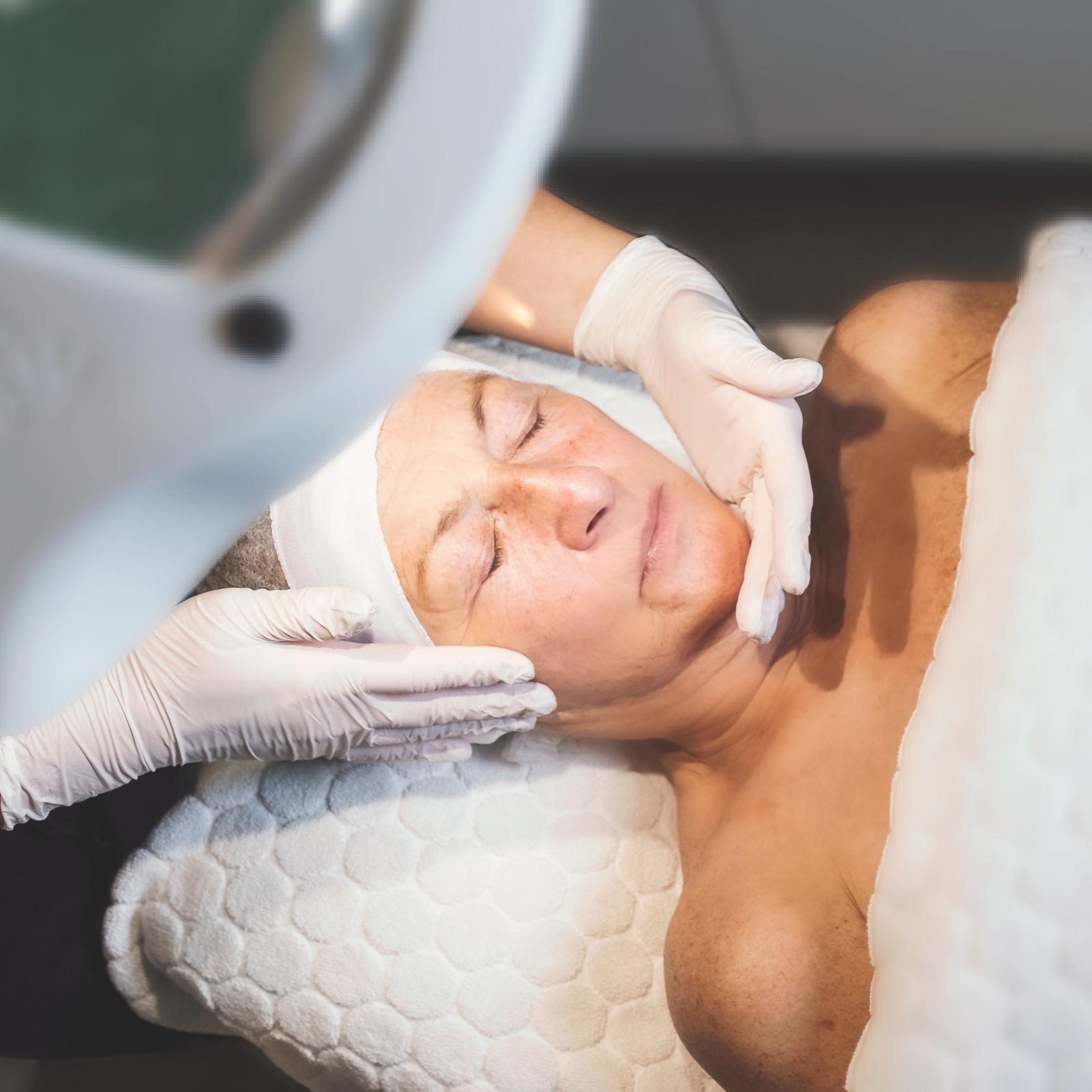 huidverbetering didi huidexperts